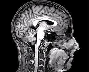 fMRI brain scan